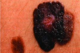 Schwarzer Hautkrebs