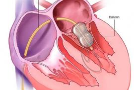 Mayoclinic Mitralstenose Ballonaufdehung
