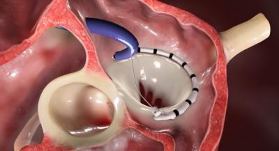 Implantation Herzklappenring / Cardioband